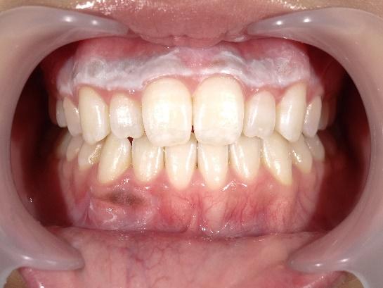 の 白い 膜 中 口